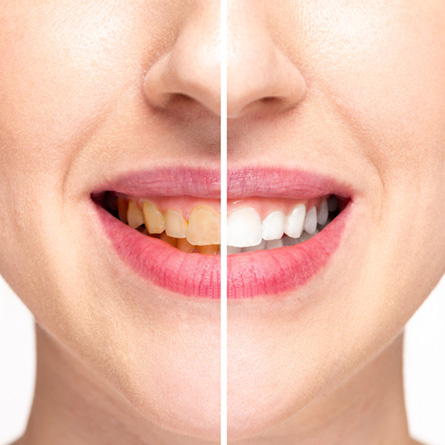 Does tooth whitening really work?