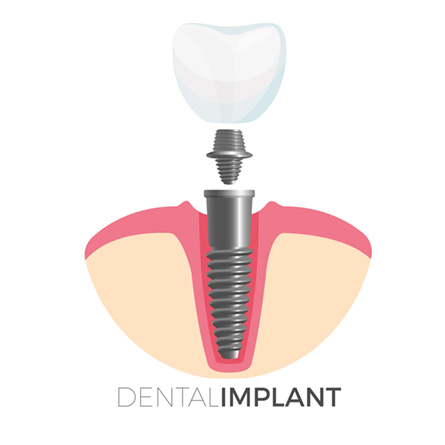 What are the steps involved in a dental implant?